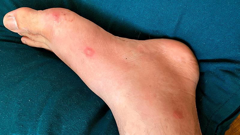 ブユ(ブヨ・ブト)は危険!痒みだけじゃなく痛くて歩けない?症状・対処法など